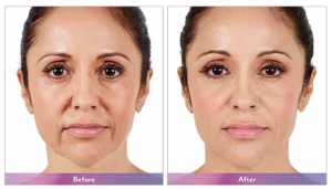 Juvederm Before and After 1